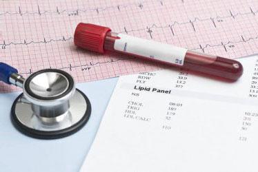 Berapa Angka Aman untuk Kolesterolmu?
